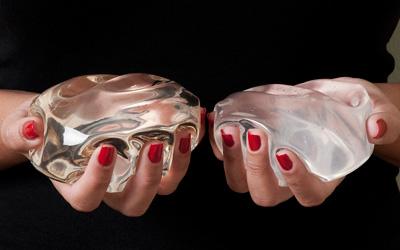 Choosing Between Saline or Silicone Breast Implants
