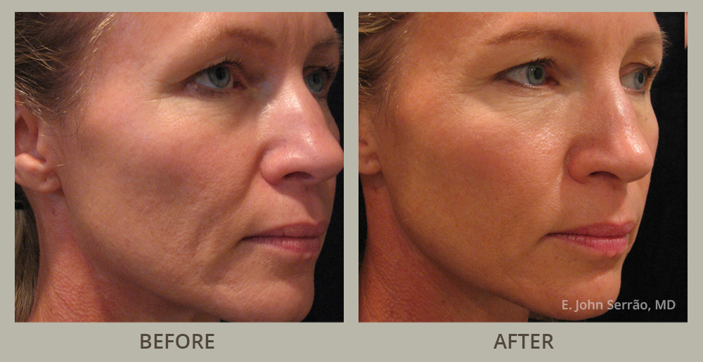 Masturbate for my moher