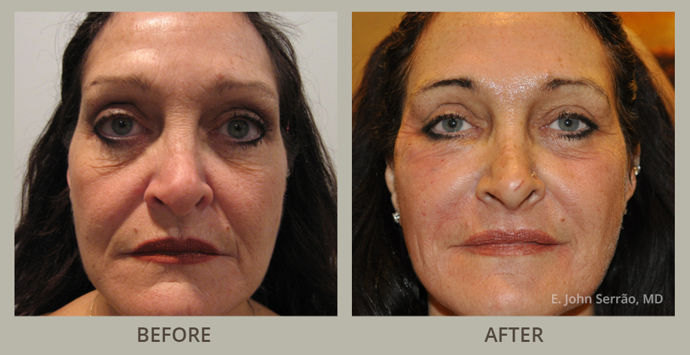 Miami interracial movies